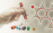Анализ крови на эстроген: как подготовиться и когда сдавать