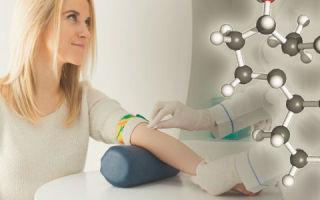 Анализ крови на тестостерон у женщин: когда сдавать и для чего это необходимо