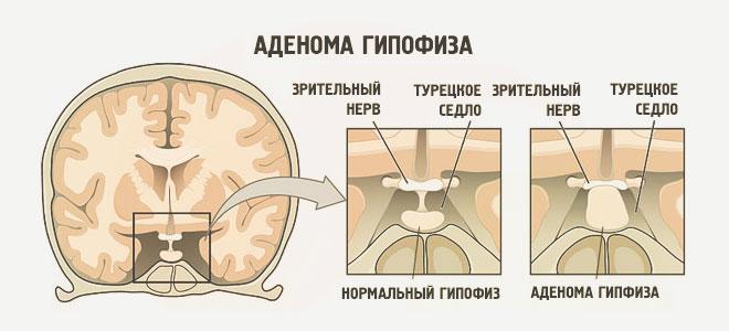 Аденома гипофиза