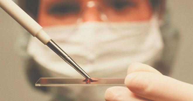 Анализ крови на кальцитонин
