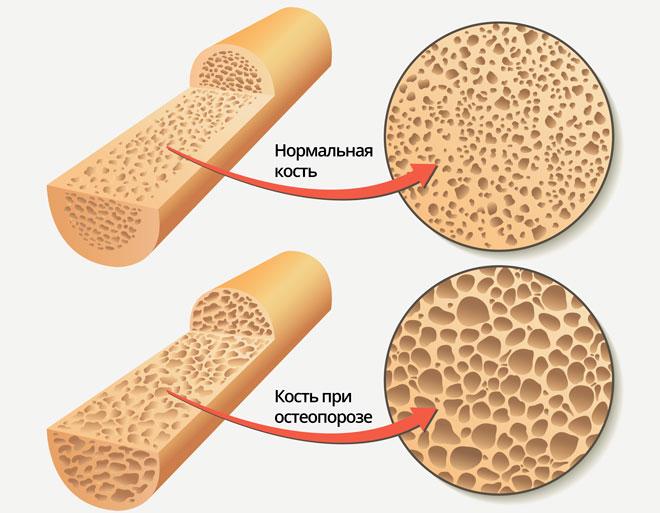 Нормальная кость и при остеопорозе