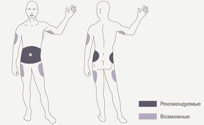 Места на теле для инъекция
