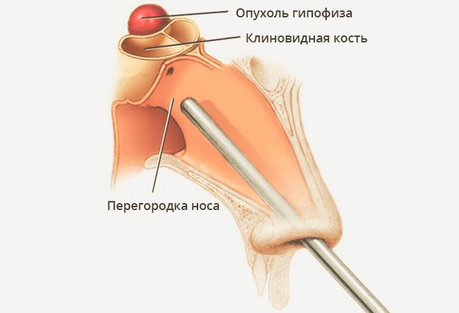 Резекция через клиновидную кость