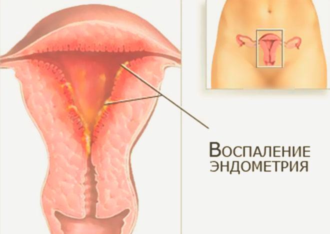 Воспаление эндометрия