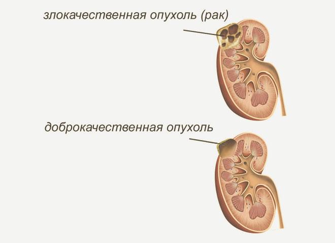 Доброкачественная и злокачественная опухоль