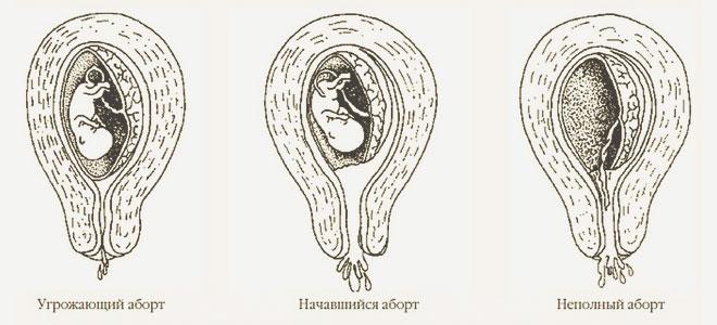 Угрожающий, начавшийся и неполный аборт