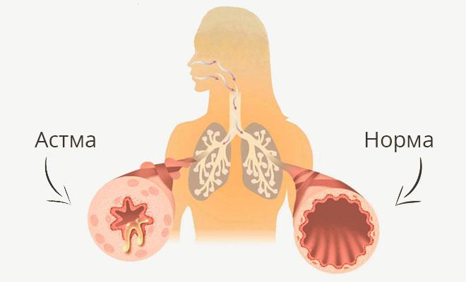 Проявление астмы