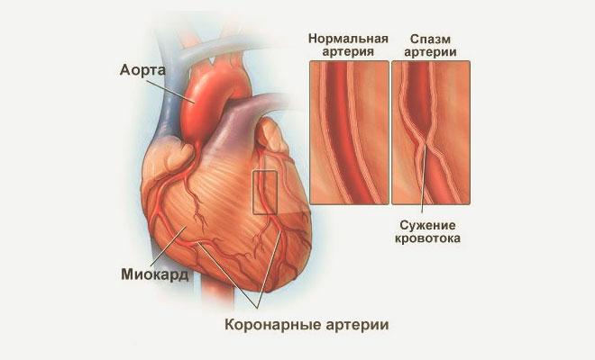 Спазм артерии