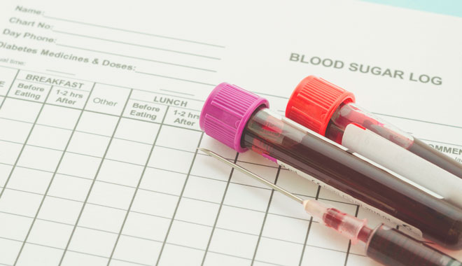 Кровь для анализа сахара