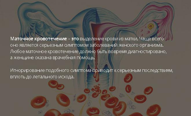 Маточное кровотечение