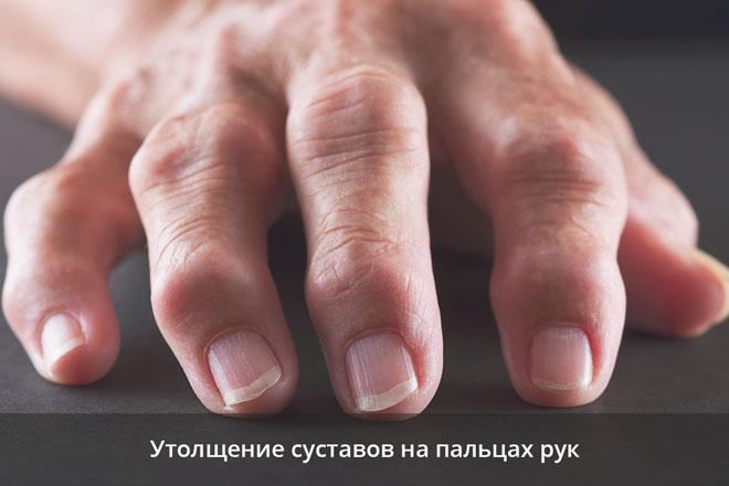 Утолщение суставов на пальцах рук