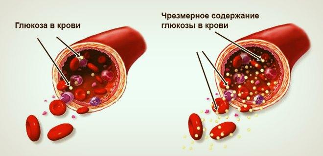 Глюкоза в крови и её чрезмерное содержание